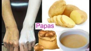 Blanquea Tu Piel en 15 Minutos Con Patata 🥔 Aclara Tu Piel y Elimina Manchas .fashionbycarol