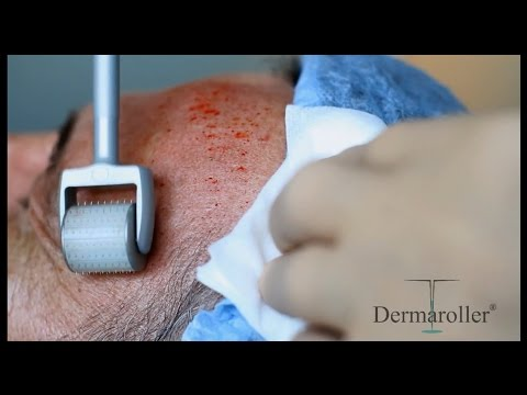 Dermaroller® Training Video