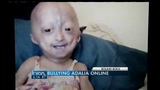 Cyber bullying of child with rare disease