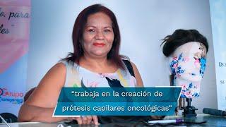 Alejandra Valdivia Márquez tiene 60 años de edad y hace 20 le diagnosticaron cáncer en la matriz, pero lo más molesto para ella fueron las críticas que recibía mientras ocurrían los cambios físicos propios de la enfermedad.  www.eluniversalpuebla.com.mx