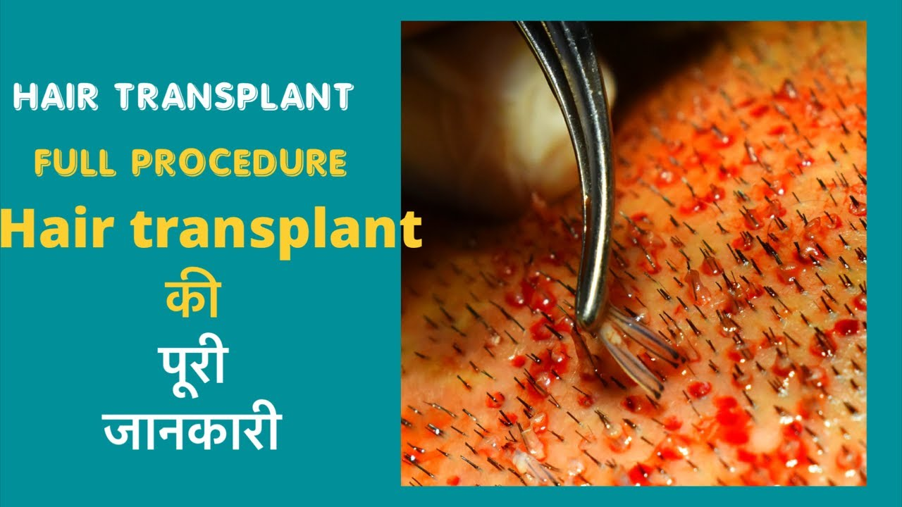 Download Hair Transplant Solutions with Full Procedure