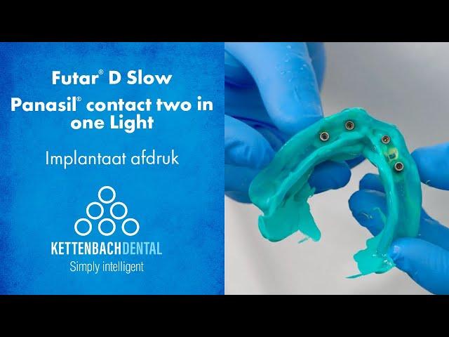 Edentaat implant afdruk met Futar® D Slow als fixatie materiaal