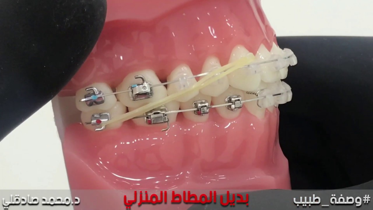 أفضل بديل لاستخدام المطاط المنزلي في تقويم الاسنان Power Scope Youtube