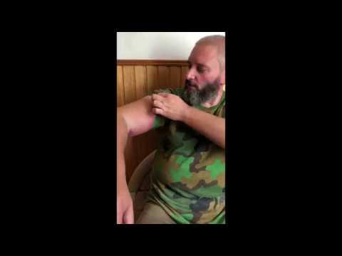 Как Вишневского гадюка укусила