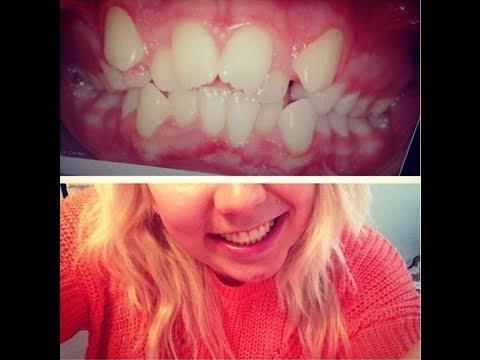 Appareil dentaire mon exp rience qui a chang ma vie for Bagues dentaires interieur