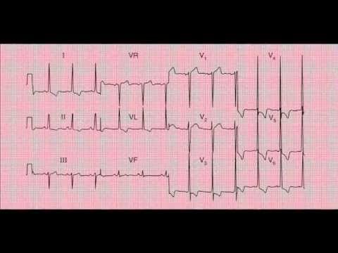www.fastlearnecg.com : Simple reading and Interpreting of a 12-lead ECG (EKG) - Yes you can do it!