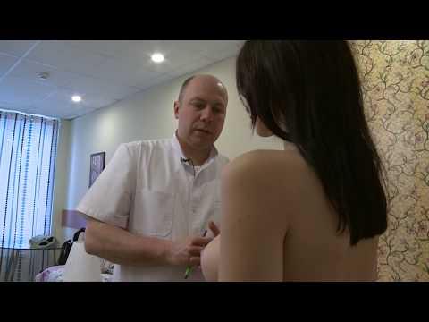 Маммопластика - увеличение груди с вертикальной подтяжкой