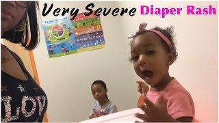 Very Severe Diaper Rash