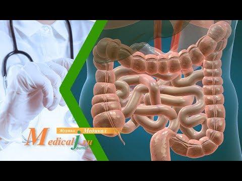 Энтероколит. Причины, симптомы, диагностика и лечение энтероколита