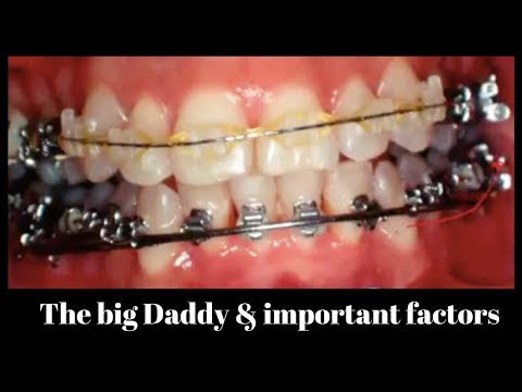 The big Daddy plus many more important factors