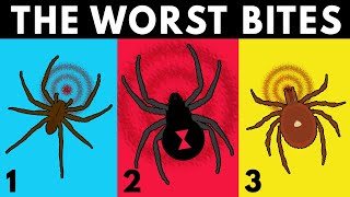 What Are the WORST Bug Bites To Get?