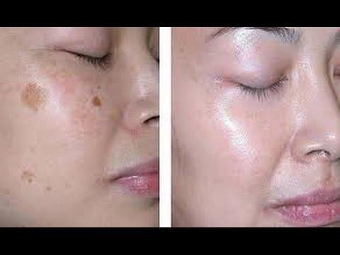 como limpiar la piel rapido