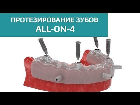 Установка имплантантов зубов (зубных имплантов)
