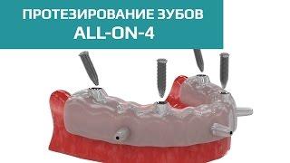 видео All-on-4 протезирование зубов, технология «Все на четырех»