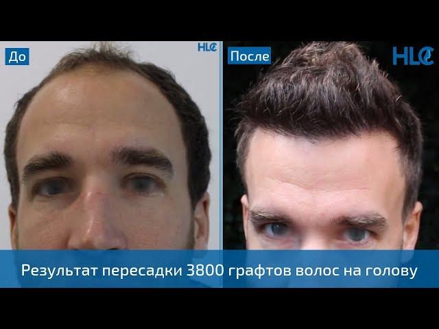 Пересадка 3800 графтов волос мужчине - Теперь его не узнать!