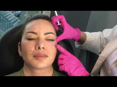 Radiesse Cheek Filler