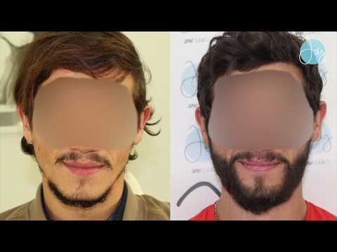 Beard Hair Transplant in Lebanon | الدكتور ابراهيم جباعي | نتيجة زراعة الذقن