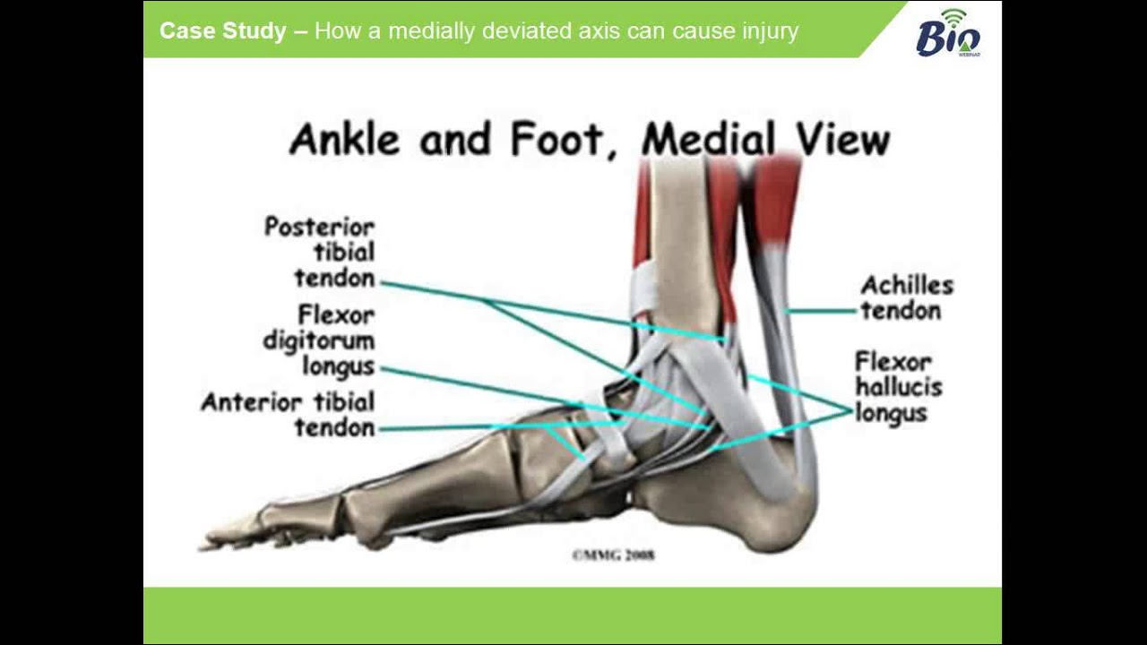 Medially Deviated Subtalar Joint Axis - Heidi Meckler - YouTube