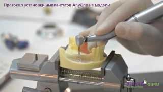 видео Протокол двухэтапной имплантации