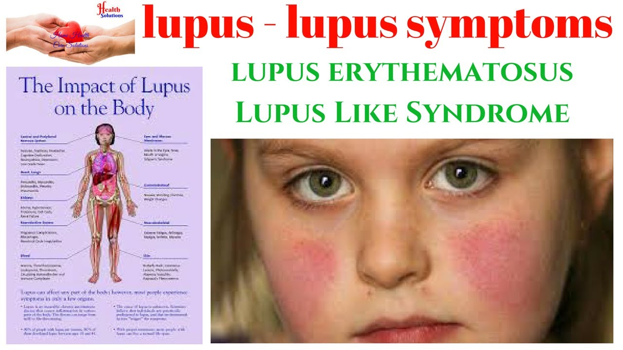 lupus - lupus symptoms - lupus erythematosus - lupus like syndrome, Skeleton