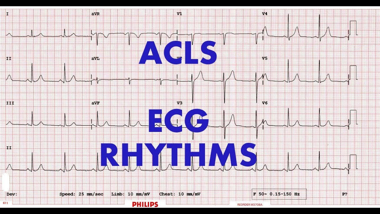 Acls Ecg Rhythm Recognition Management Part 1 Youtube