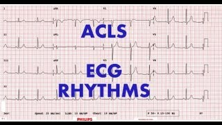 acls ecg rhythm recognition management part 1