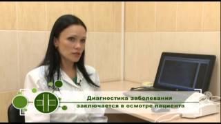 видео Очаговая алопеция: причины, лечение