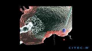 Parkinson 3 - Tratamiento de la enfermedad de Parkinson