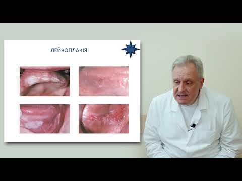 Лейкоплакія та онкопатологія слизової порожнини рота і губи
