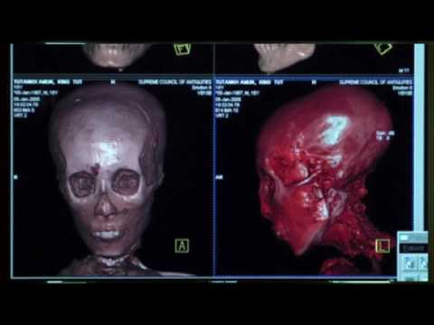 Brien Foerster Mystery of the Elongated Skulls & DNA Tests F