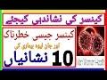Cancer Ki Nishan Dahi Karne Wali 10 Nishaniyan Ap Bhi Janiye   Men Women Health