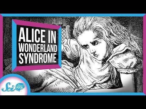 alice-in-wonderland-syndrome