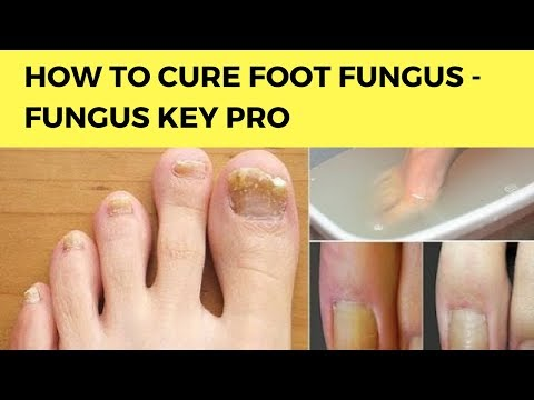 How To Cure Foot Fungus – Fungus Key Pro