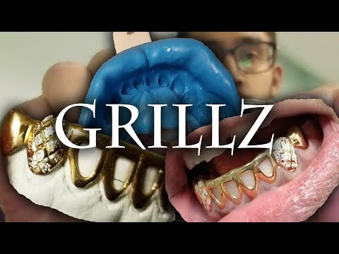 Unboxing Custom GOLD Grillz! 😬 How To Make Mould + Final Product 🔥 From CS Grillz 👈
