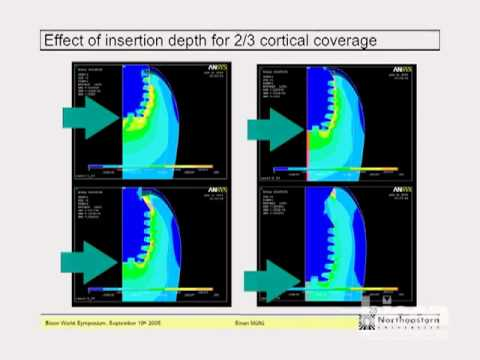 Finite Element Analysis of Various Implant Designs Including Bicon's 6.0mm x 5.7mm Implant