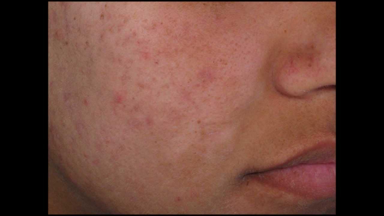 mild acne #10