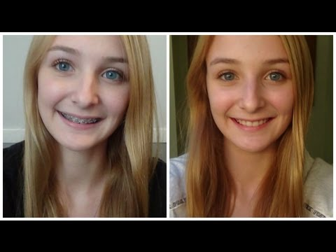 Invisalign,Invisalign cost,Invisalign before and after, <a href=