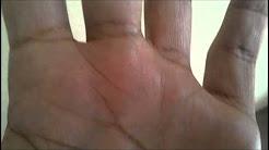 MORGELLONS BLACK SPECKS SYNDROME(BACTERIA! - YouTube