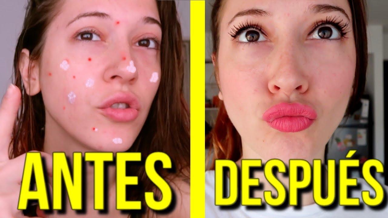Antes Y Despues Pasta De Dientes En La Cara Para Eliminar Granos Funciona Youtube