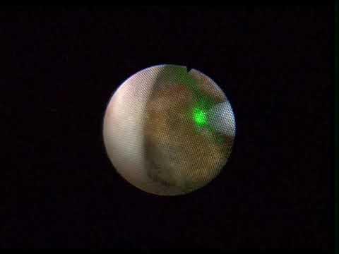 Laser Lithotripsy Doovi
