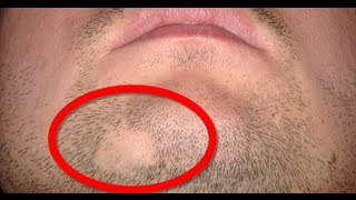How to cure Alopecia Areata
