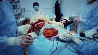 видео Операция по удалению грудных желез
