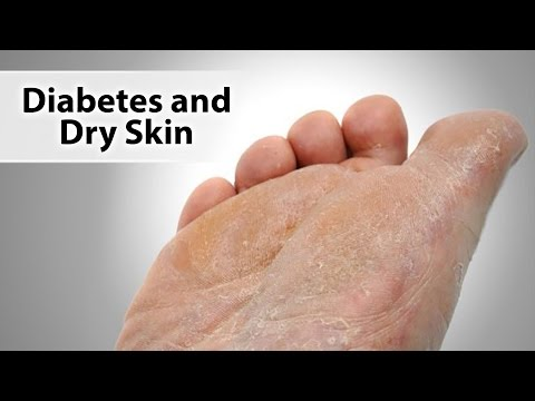 Diabetes And Dry Skin