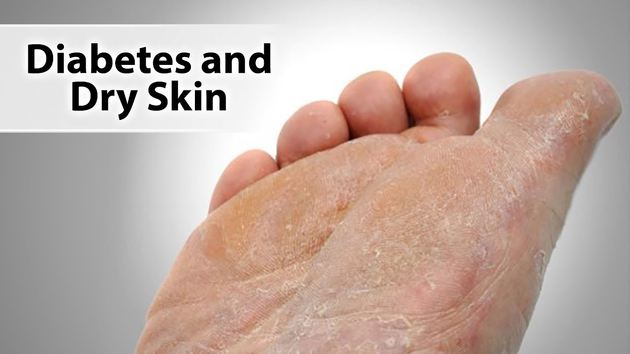 Diabetes And Dry Skin Youtube