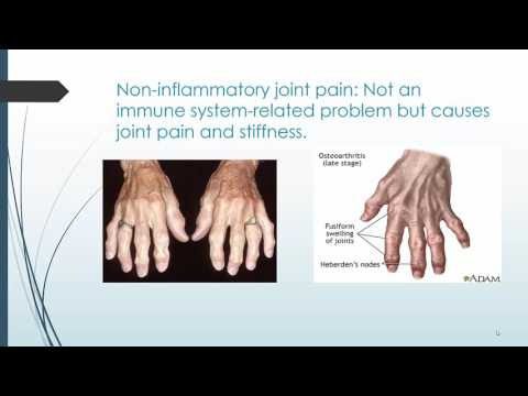 Managing the Symptoms of your Arthritic Condition