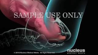 Repeat youtube video Episiotomy