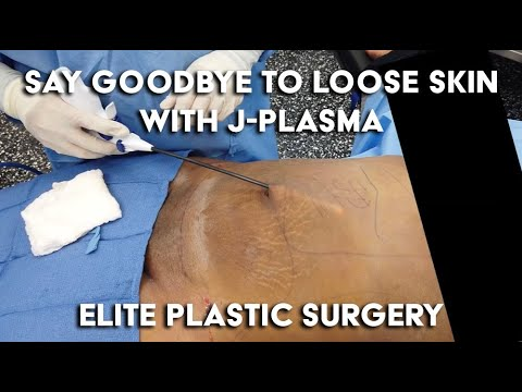 say-goodbye-to-loose-skin-with-j-plasma