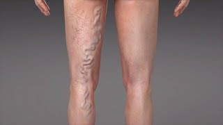 Colorado clinic springs vein varicose