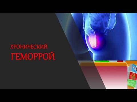 Хронический геморрой лечение схема симптомы диагностика | температура | заболевание | обострение | воспаление | антибиотик | ущемление | препарат | геморрой | суставы | лечение