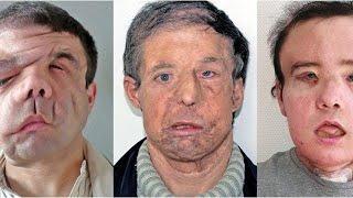 Transplantation: Der Mann mit den drei Gesichtern